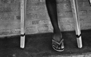 Immagine che ritrae la gamba di un ragazzo insieme a due stampelle. È la foto che abbiamo scelto come simbolo per raccontare il genocidio del Rwanda